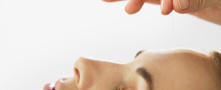 acupuntura-noticia